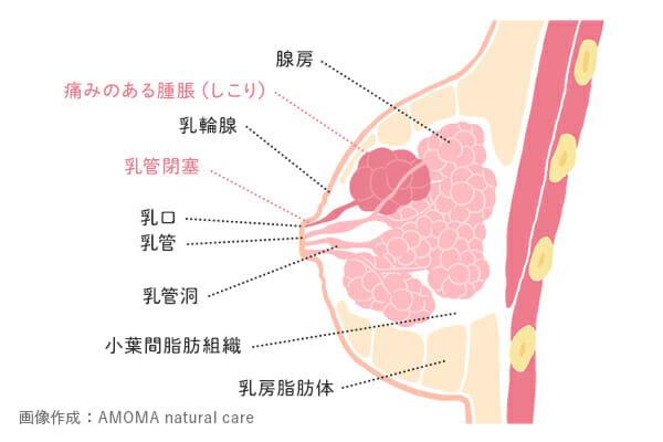 乳腺炎におけるしこり
