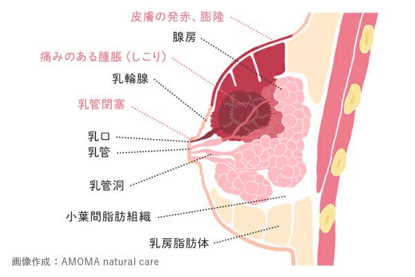 乳腺炎における膿